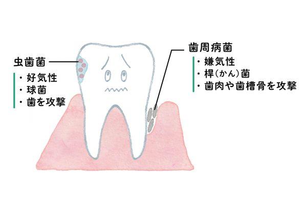 歯科で聞きましょう。「歯周ポケットはありますか」